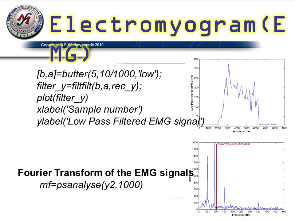 Electromyogram(EMG) [b,a]=butter(5,10/1000, low );